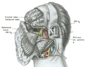 Lateral Approach to Skull Base