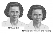 The Aging Face
